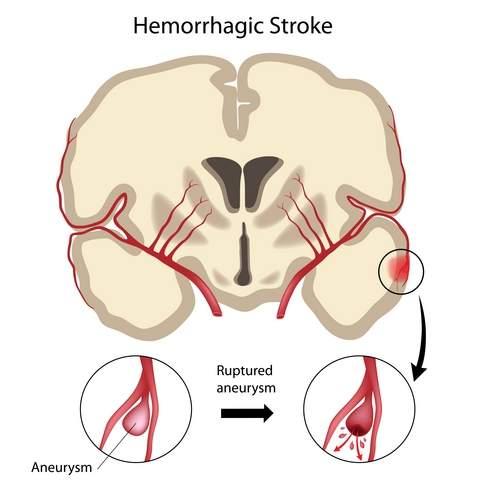 геморрагический инсульт, лечение в Саратове геморрагического инсульта, реабилитация