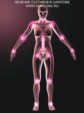 лечение суставов в саратове, лечение суставов саратов