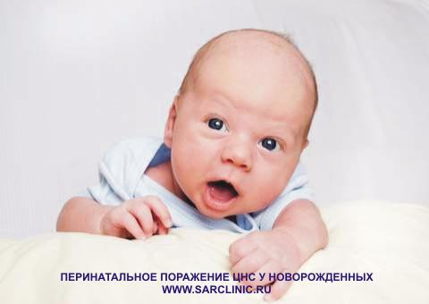 Перинатальное поражение ЦНС, центральной нервной системы у новорожденных, лечение