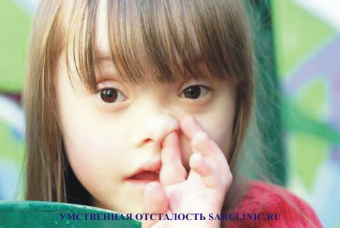 умственная отсталость у детей, слабоумие, олигофрения, лечение, как лечить