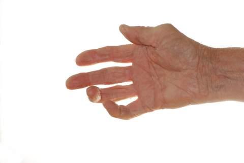 воспаление суставов лечение в саратове, в россии, как лечить артрит, лечение артрита