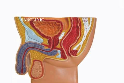 Лекарства для лечения бактериального простатита